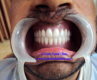Complete Full Mouth Denture