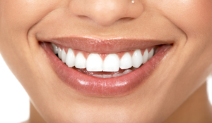 Instant Tooth Whitening